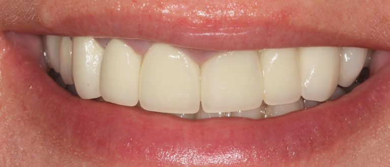 dental smile makeover in kent