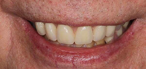 John after smile makeover at Dental Beauty Swanley in kent