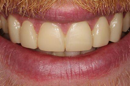 steve after dental bonding kent 2