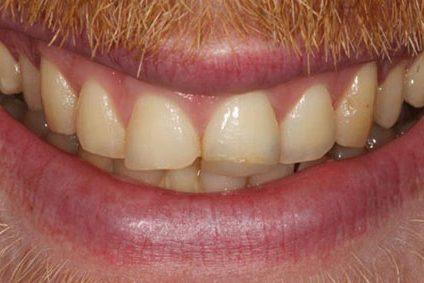 steve before dental bonding kent 2