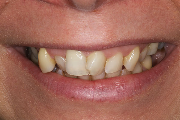 teeth straightening in swanley